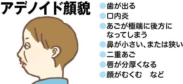 アデノイド顔貌 歯が歯が出る 口内炎 あごが極端に後方になってしまう 鼻が小さい、または狭い 二重あご 唇が分厚くなる 顔がむくむ など