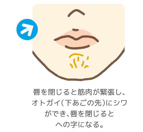 への字のオトガイ